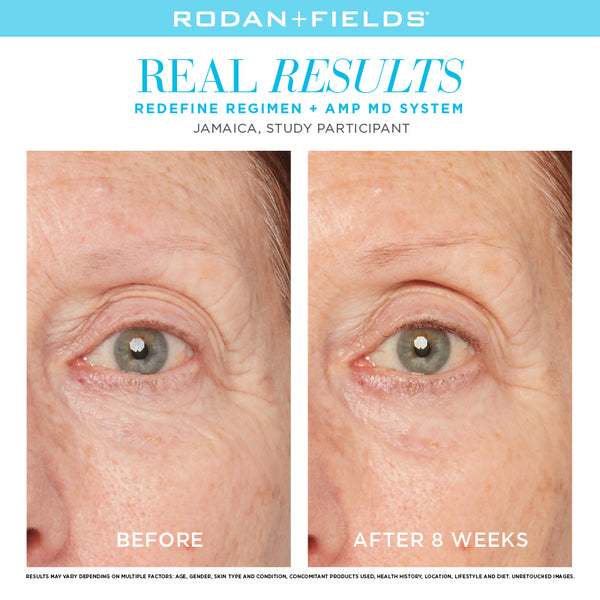 R+F REDEFINE REGIMEN FOR THE APPEARANCE OF LINES, PORES AND LOSS OF FIRMNESS