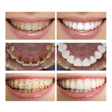 Powerful Teeth Whitening & Plaque Stain Removing Essence Liquid