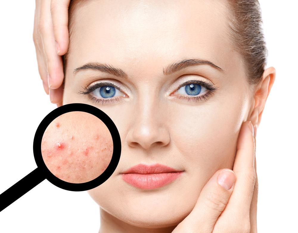 How to help and prevent acne
