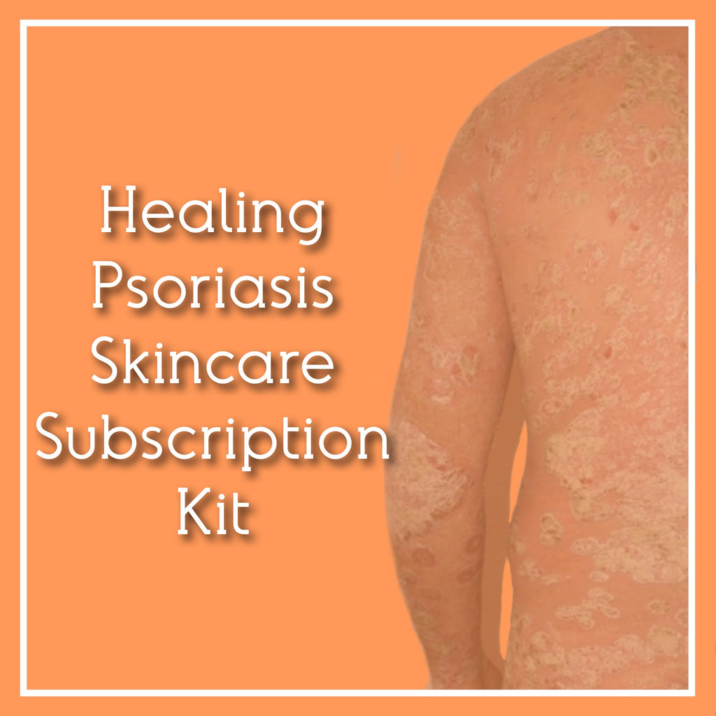 Fra Fra's Naturals | Healing Psoriasis Skincare Subscription Kit