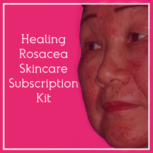 Fra Fra's Naturals | Healing Rosacea Skincare Subscription Kit