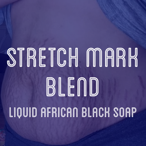 Fra Fra's Naturals | Premium Stretch Mark Liquid Black Soap Blend