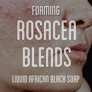 Fra Fra's Naturals | Premium Healing Rosacea Foaming African Black Soap Face and Body Wash