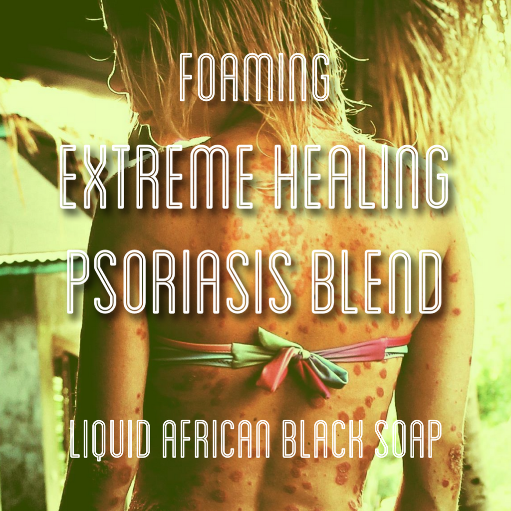 Fra Fra's Naturals | Premium Extreme Healing Psoriasis Foaming African Black Soap Face and Body Wash