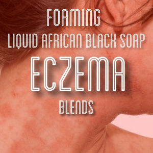 Fra Fra's Naturals | Premium Healing Eczema Foaming African Black Soap Face and Body Wash