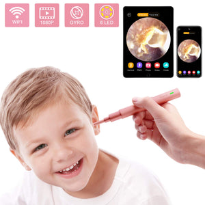 Wireless Endoscope Gyroscope Compatible Smartphone