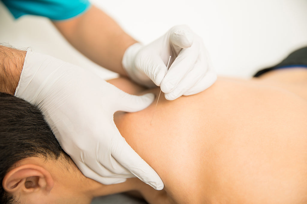 What is dry needling: Dry needling on the neck