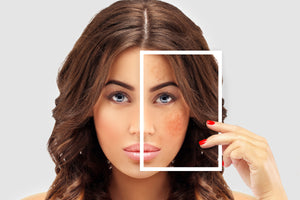 Correcting Hyperpigmentation With Cosmetics