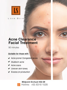 [S190011] Acne Clearance Facial Treatment - EFFECTIVE WAY to clear STUBBORN ACNE!