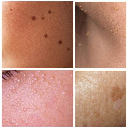Zap Way Skin BLEMISHES! Say Good bye to Seborrheic keratosis, Solar Lentigo (aka Liver spots/ Age spots), Milia seeds (aka Oil seeds), Skin Tags, and Moles