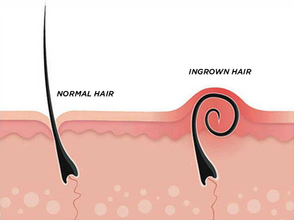 Brazilian Ingrown Hair Extraction