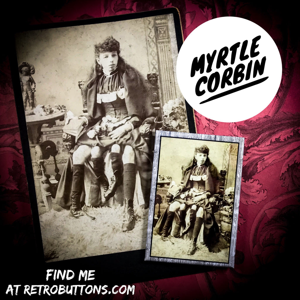Myrtle Corbin, The Four-Legged Girl from Texas