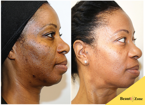 black women hyperpigmentation