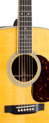 MARTIN & CO D-35 w/ LR BAGGS ANTHEM PICKUP