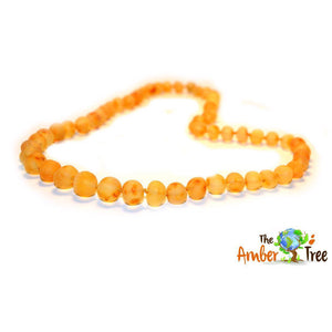 Caramel RAW Baltic Amber Necklace