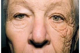 New England Journal: 69yo truck driver effects of sun damage on one side of his face