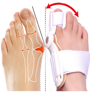 Best Orthopedic Bunion Corrector -  Non-Surgical Natural Treatment & Relief