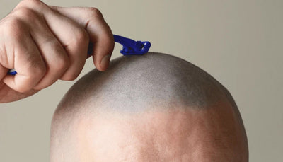 How To Care For A Bald Head (5 Steps to Maintaining Your Scalp)