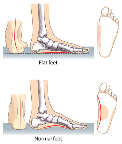 Foot Alignment and Orthotics