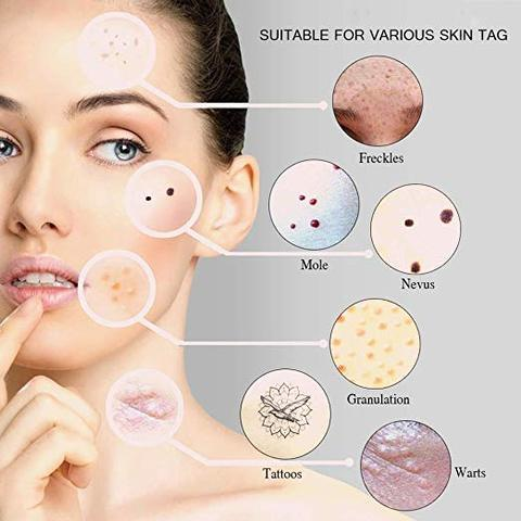 Skin Spots Removal Pen for Acne Scars & Wrinkles