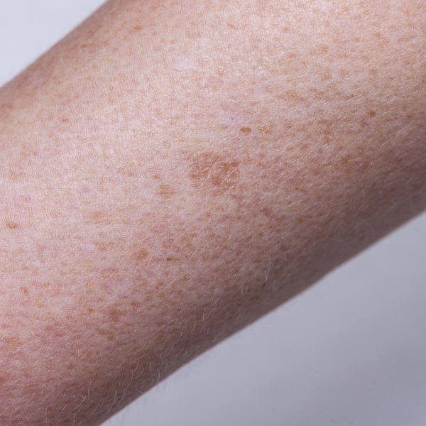 Dermaroller for Hyperpigmentation, Melasma and Dark spots on the skin