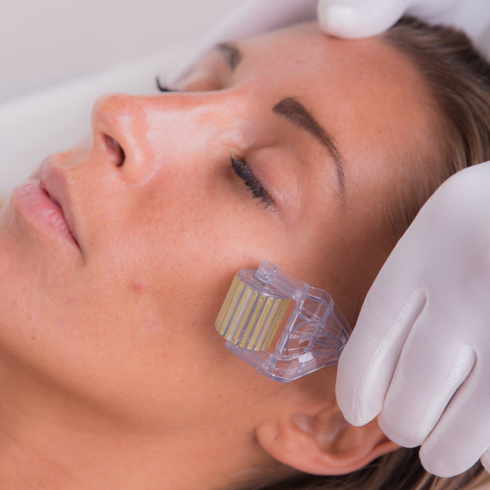Microneedling for Acne Scars : How to Assist Acne Scars