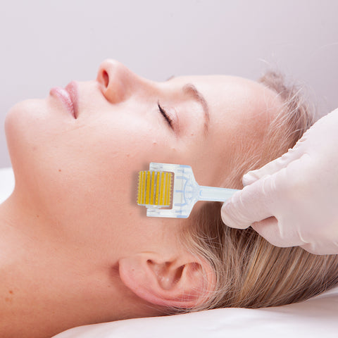 is microneedling for acne scars permanent