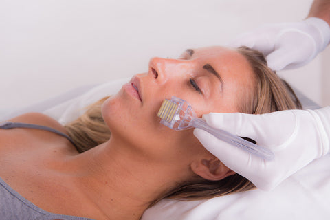 can you do a chemical peel before microneedling