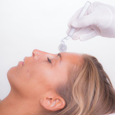 how many microneedling sessions for acne scars