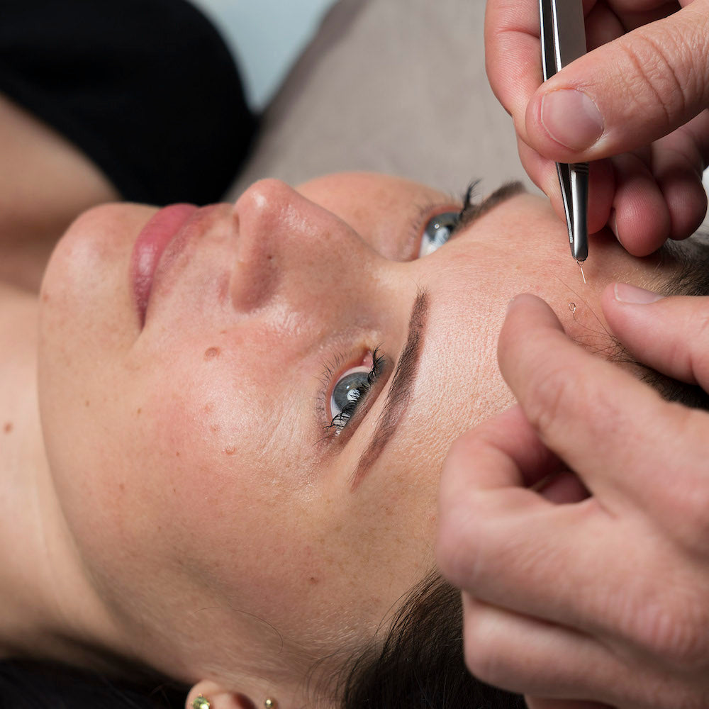 Cosmetic Acupuncture Training Online