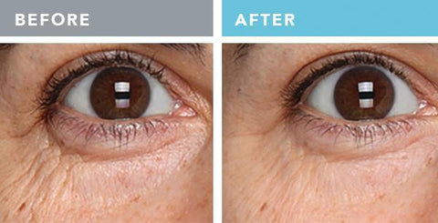 eye-firming-complex-before-after