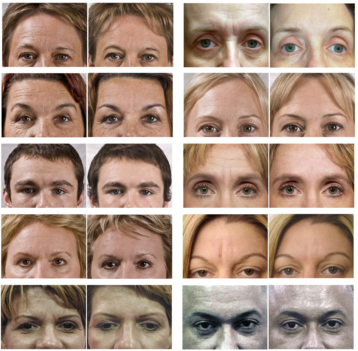 Forehead & Between Eyes Wrinkle Patch Free Shipping