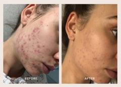 Before - After TheBeautyChef