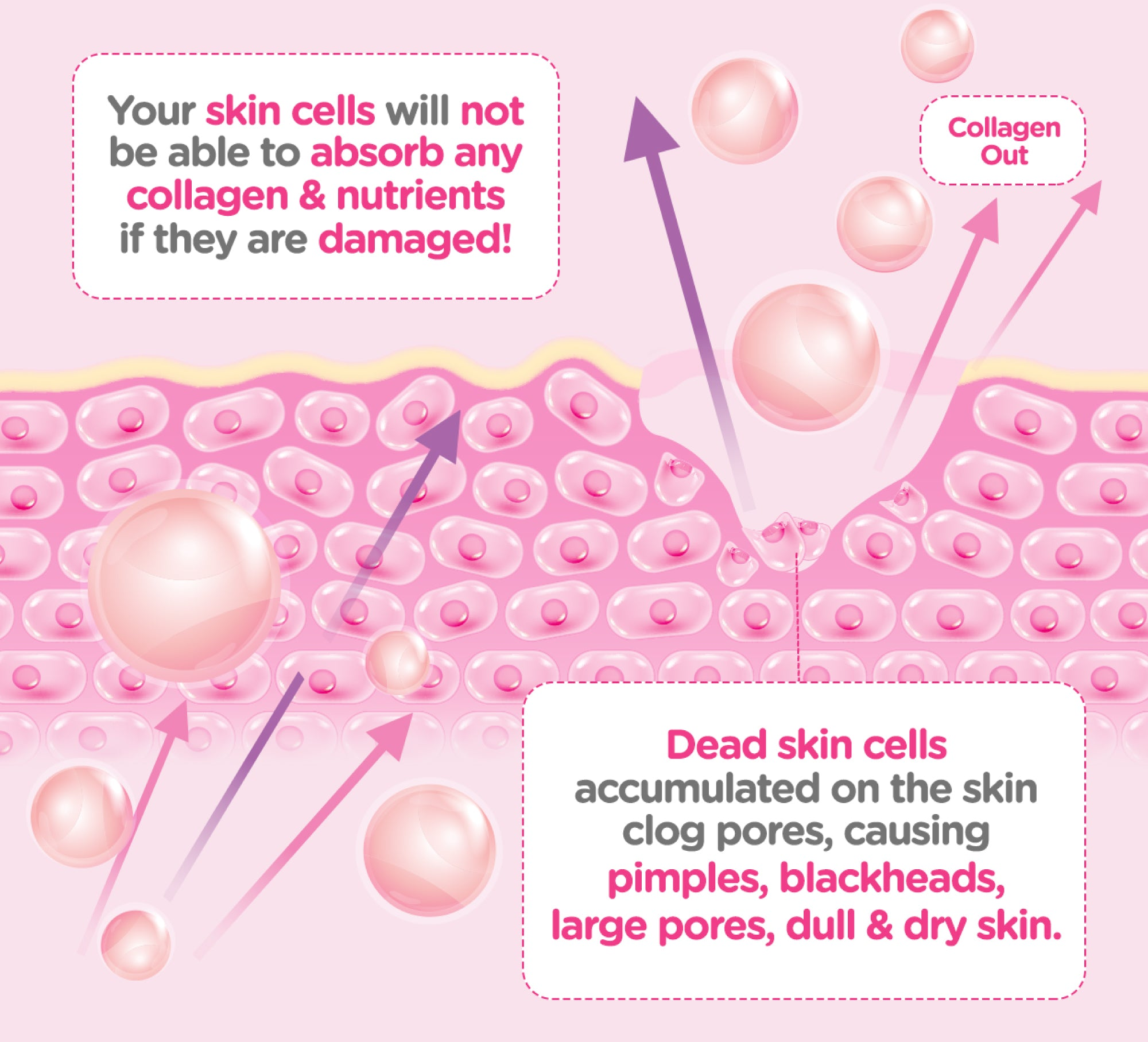 Damaged skin is unable to absorb any collagen & nutrients.  Damaged skin gradually becomes dead skin cells accumulated on the skin. They will clog pores, causing pimples, blackheads, large pores, dull & dry skin.