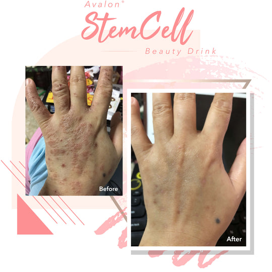Real Results Avalon Stemcell Collagen Drink Ally