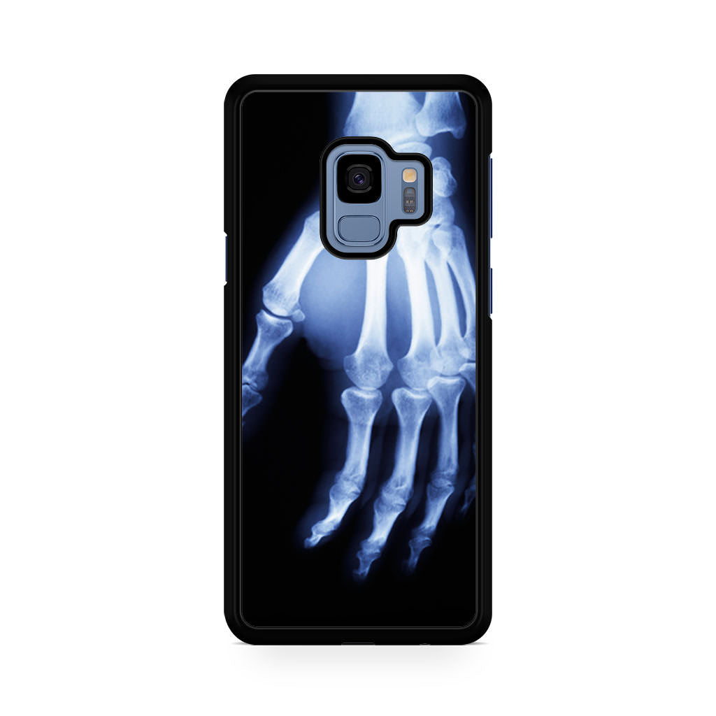 Hand X Ray Samsung Galaxy S9/S9+ case