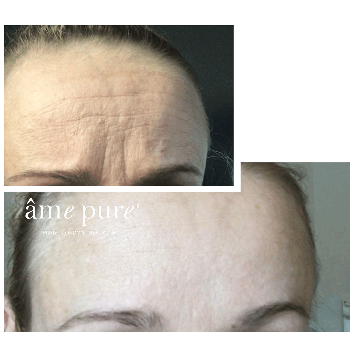 Anne- Mette Before After