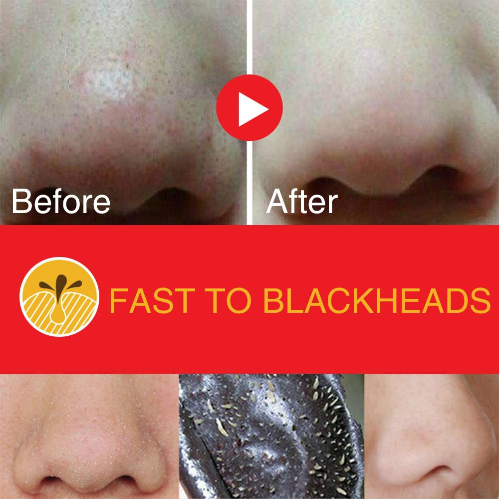 ACTIVATED CHARCOAL BLACKHEAD REMOVING PORE STRIPS - 10 PCS