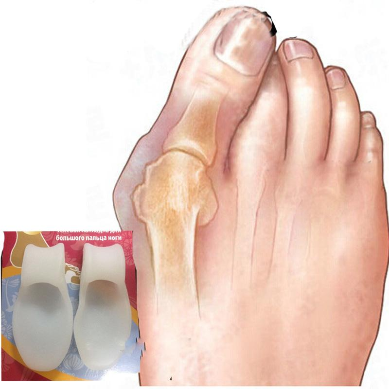 Silicone gel bunion big toe spreader