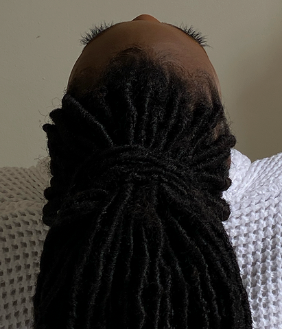 Ways to Maintain a Healthy Hairline and Fix Thinning Edges