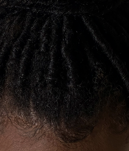 How can I protect my hairline?