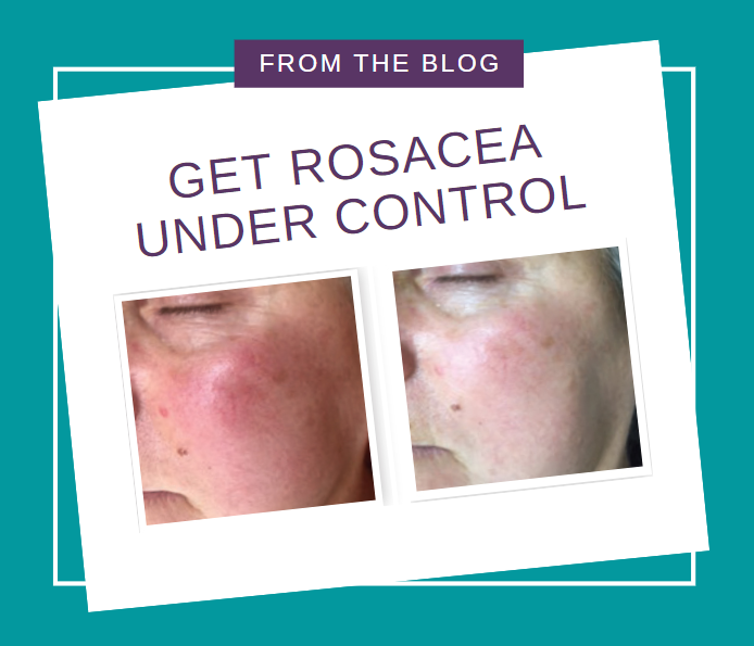 Get Rosacea Under Control Using These Steps