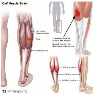 Calf Cramps Can Cause Calf Strains With Long-lasting Impact