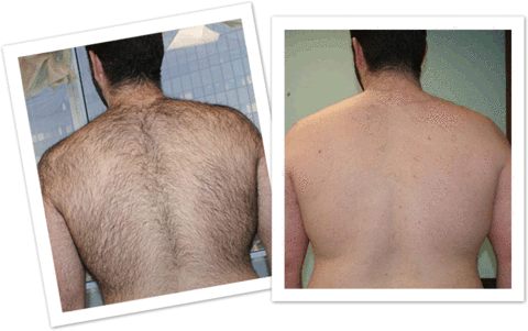 SprayAway Hair Removal Spray Men Back Hair