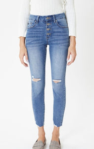Button Fly Ankle Skinny