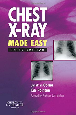 Chest X-Ray Made Easy, 3e