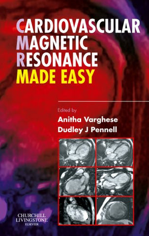 Cardiovascular Magnetic Resonance Made Easy, 1e
