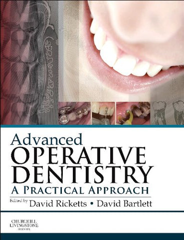 Advanced Operative Dentistry: A Practical Approach, 1e