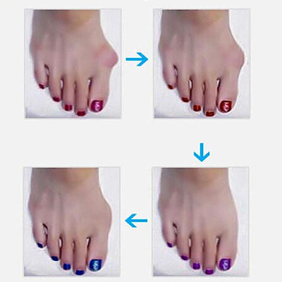 Pain Relief Bone Bunion Corrector -