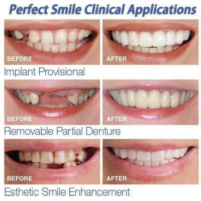 Perfect Veneers Instant Smile Teeth -